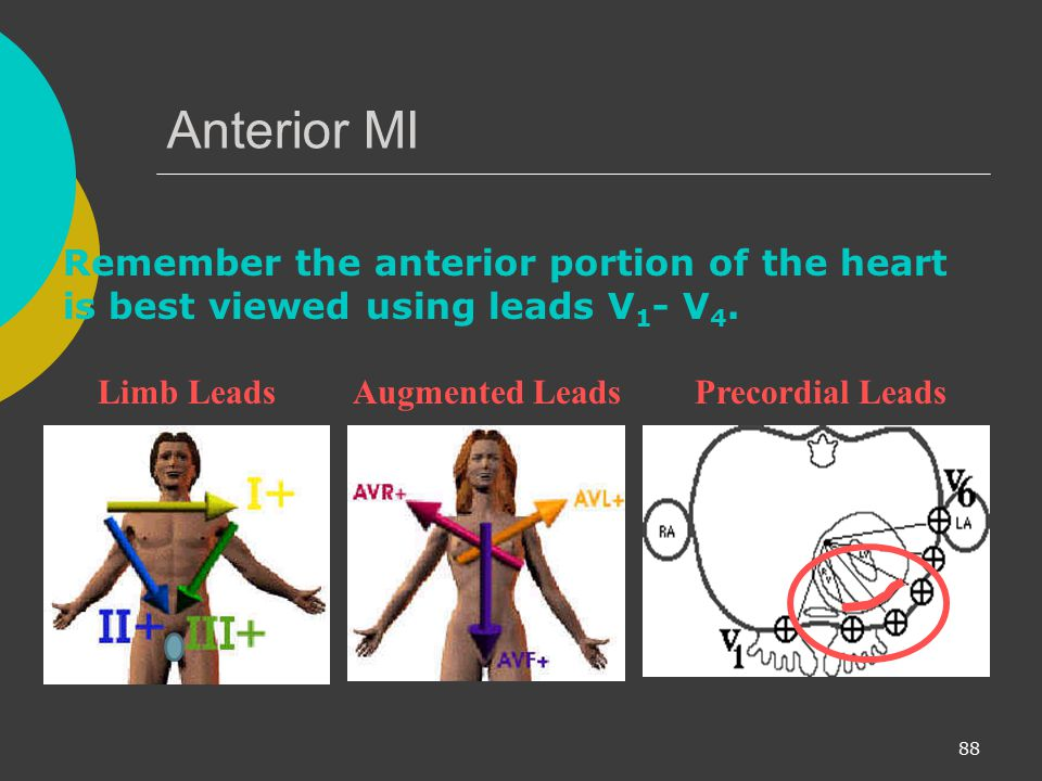 Anterior MI Remember the anterior portion of the heart is best viewed using leads V1- V4. Limb Leads.