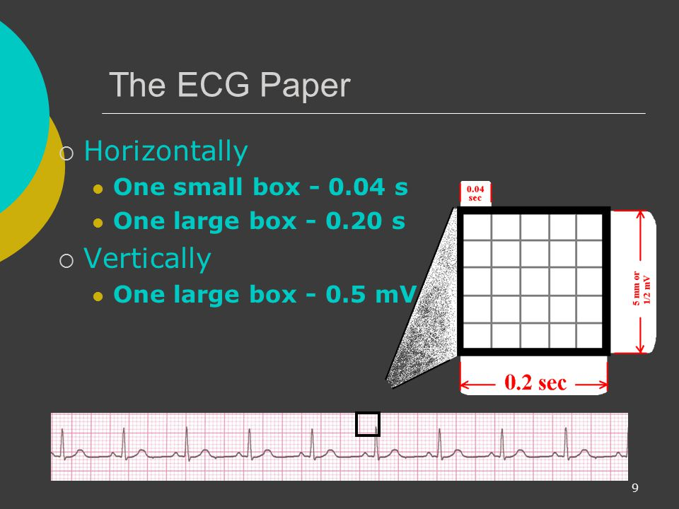 The ECG Paper Horizontally Vertically One small box s