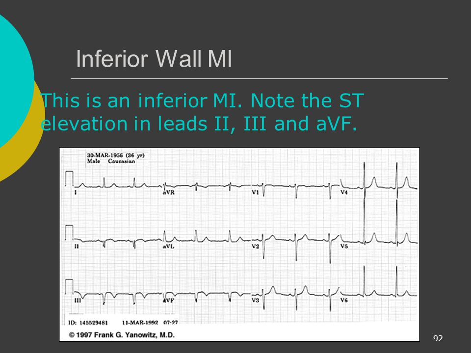 Inferior Wall MI This is an inferior MI. Note the ST elevation in leads II, III and aVF.