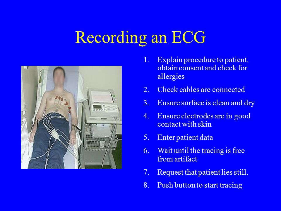 Recording an ECG Explain procedure to patient, obtain consent and check for  allergies. Check