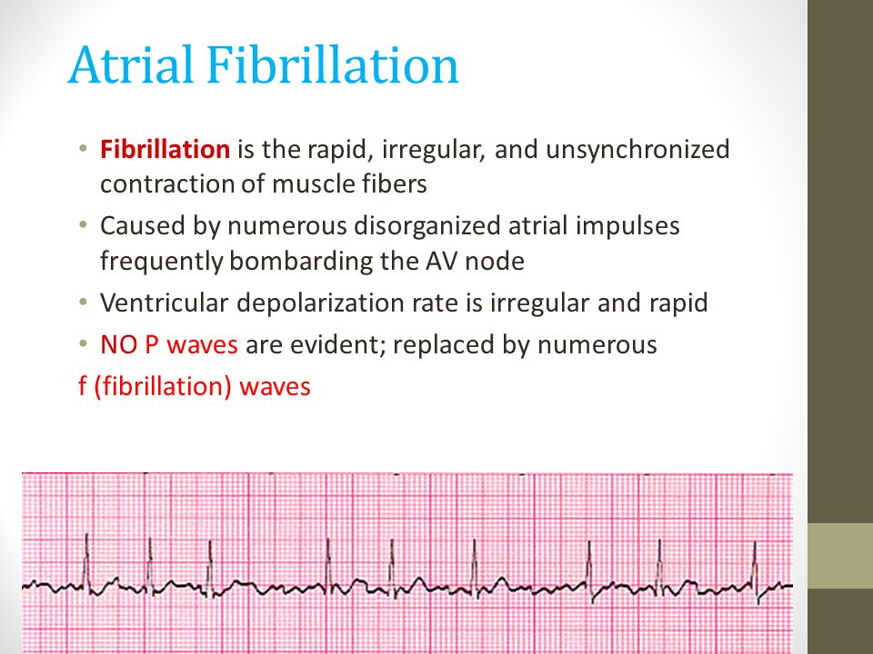 Atrial Fibrillation Fibrillation is the rapid, irregular, and unsynchronized contraction of muscle fibers.