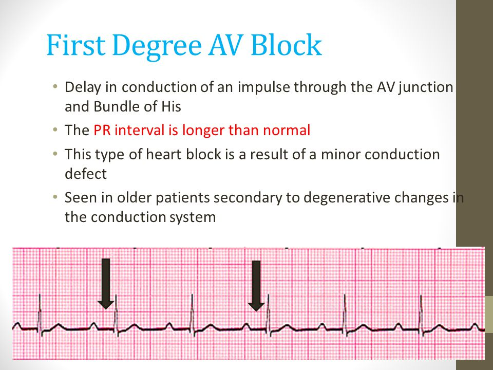 First Degree AV Block Delay in conduction of an impulse through the AV junction and Bundle of His. The PR interval is longer than normal.