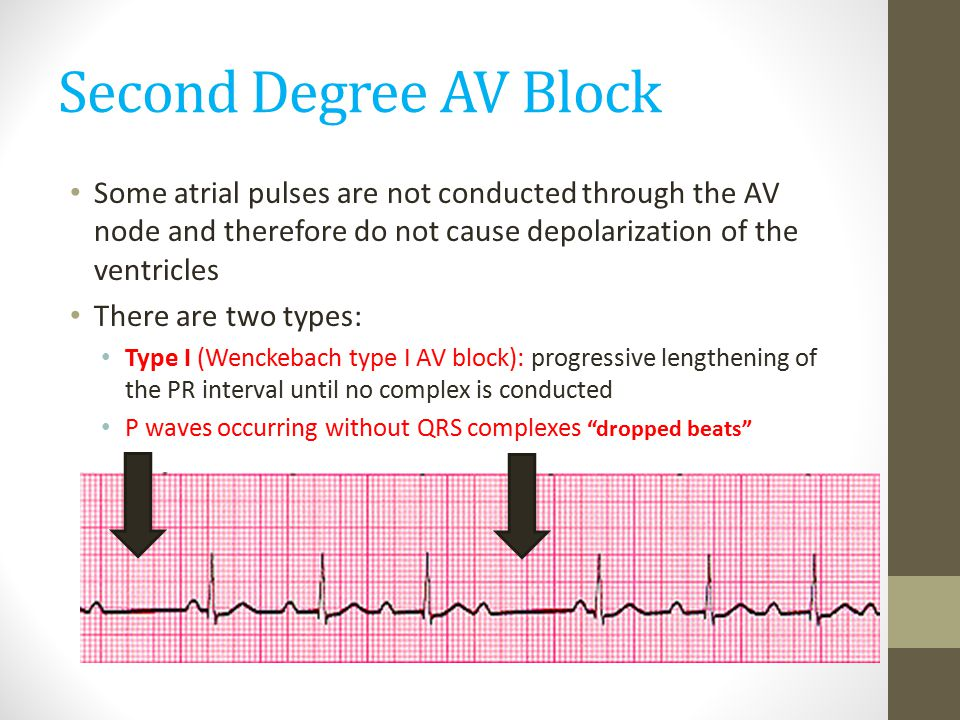 Second Degree AV Block Some atrial pulses are not conducted through the AV node and therefore do not cause depolarization of the ventricles.
