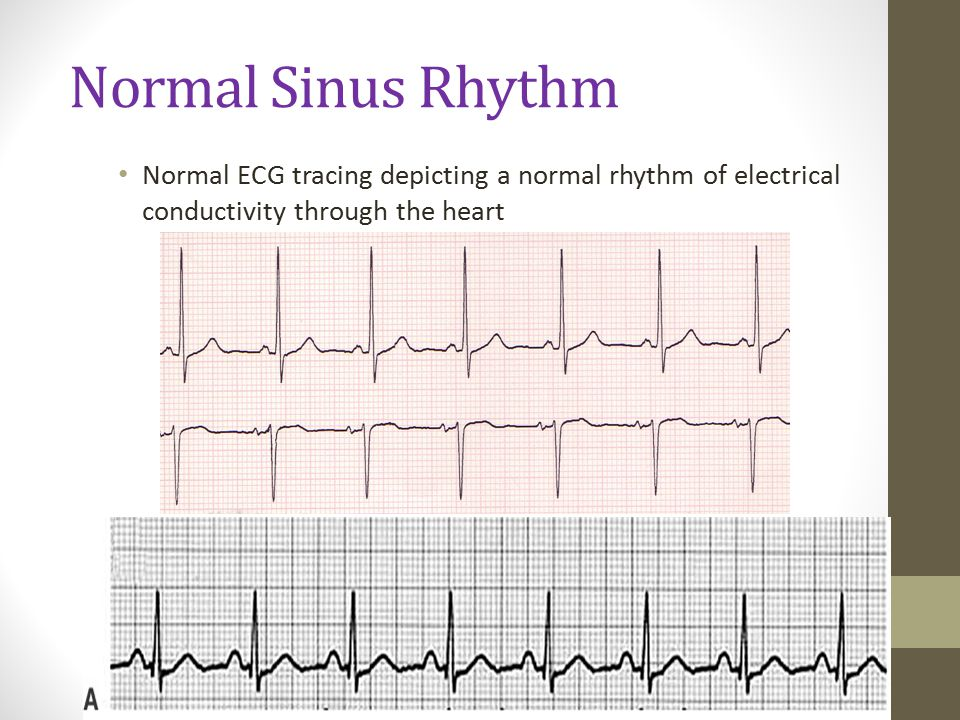 Normal Sinus Rhythm Normal ECG tracing depicting a normal rhythm of electrical conductivity through the heart.