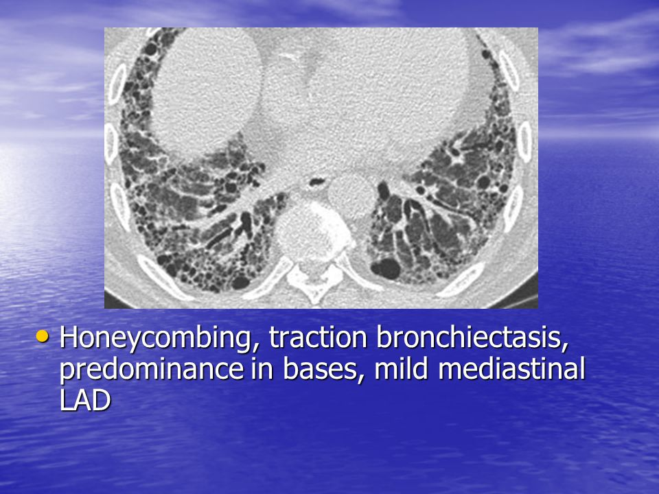 Honeycombing, traction bronchiectasis, predominance in bases, mild mediastinal LAD
