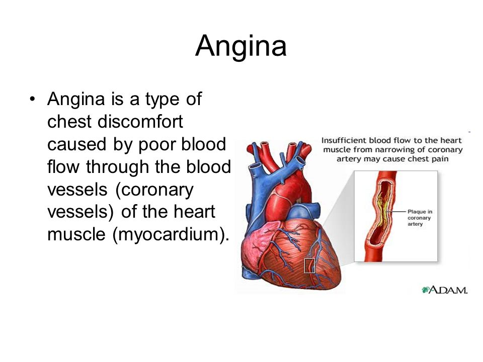 Angina Angina is a type of chest discomfort caused by poor blood flow through the blood vessels (coronary vessels) of the heart muscle (myocardium).