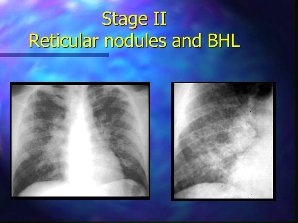 Stage II Reticular nodules and BHL