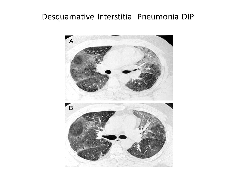 Desquamative Interstitial Pneumonia DIP