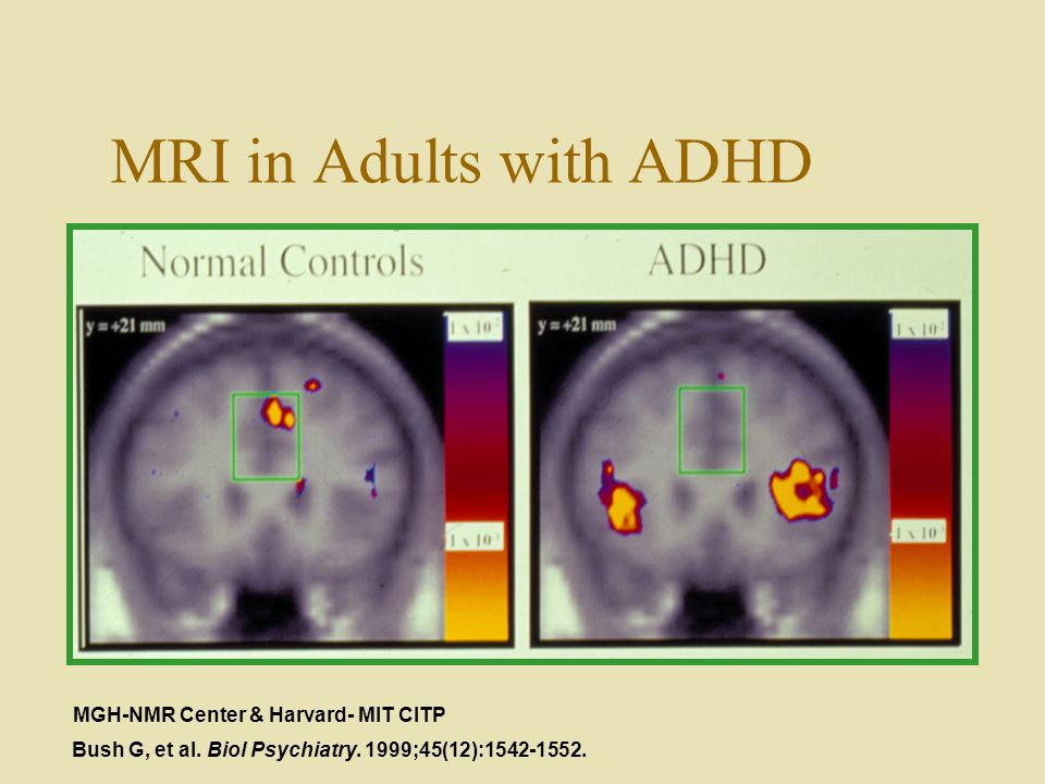 MRI In Adults With ADHD MGH NMR Center Harvard MIT CITP