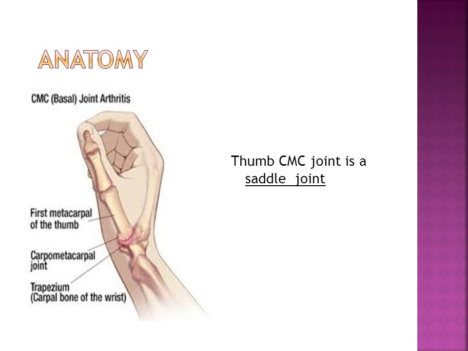 Occupational therapy and thumb base OA - ppt video online download