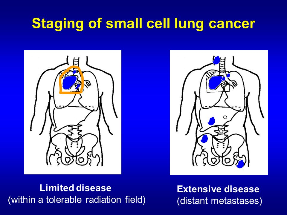 small cell lung cancer  sclc  and tkis in nsclc
