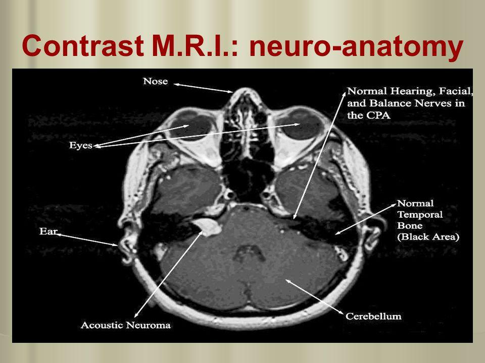 Fine Mri Iac Anatomy Motif - Anatomy And Physiology Biology Images ...
