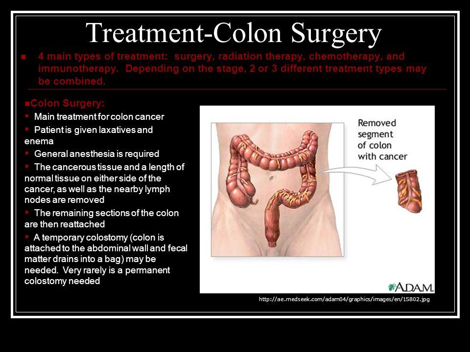 cancer de colon ppt 2021