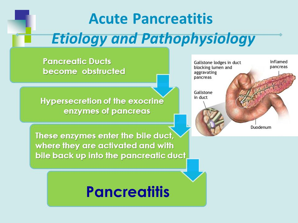 Acute Pancreatitis Etiology and Pathophysiology