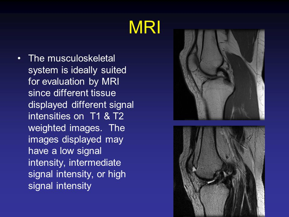 Musculoskeletal Radiology - ppt video online download