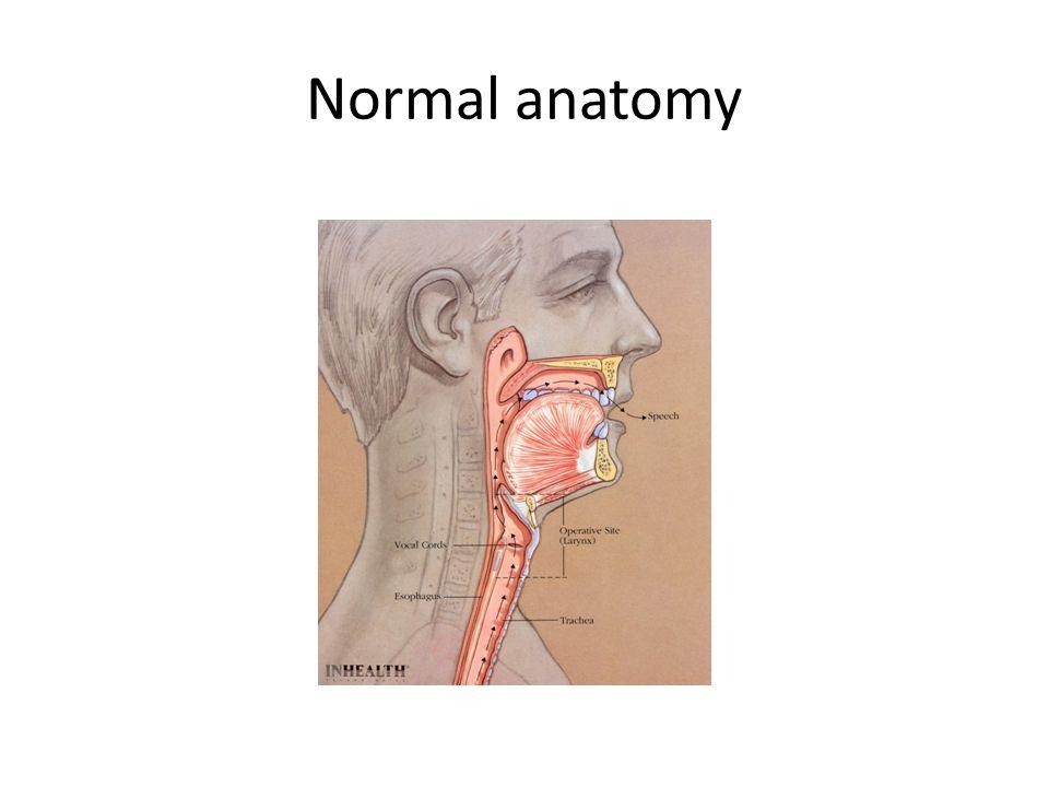 Laryngectomy & Tracheostomy Emergency Management & Patient ...
