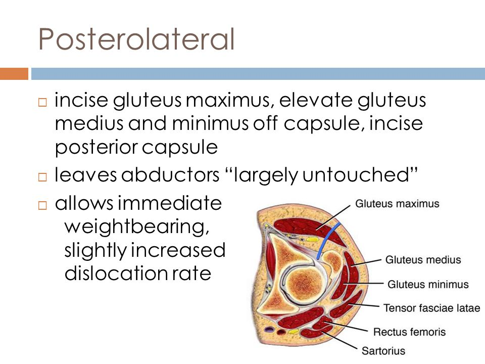 Posterolateral Hip Replacement Precautions
