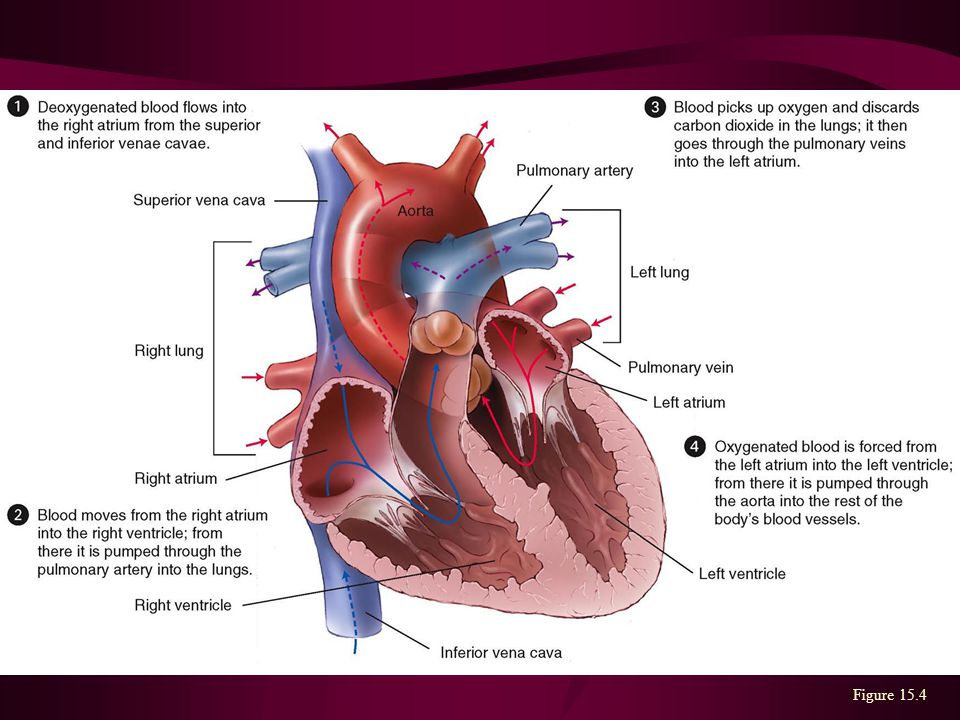 CVD statistics Cardiovascular disease (CVD) is the leading cause of ...