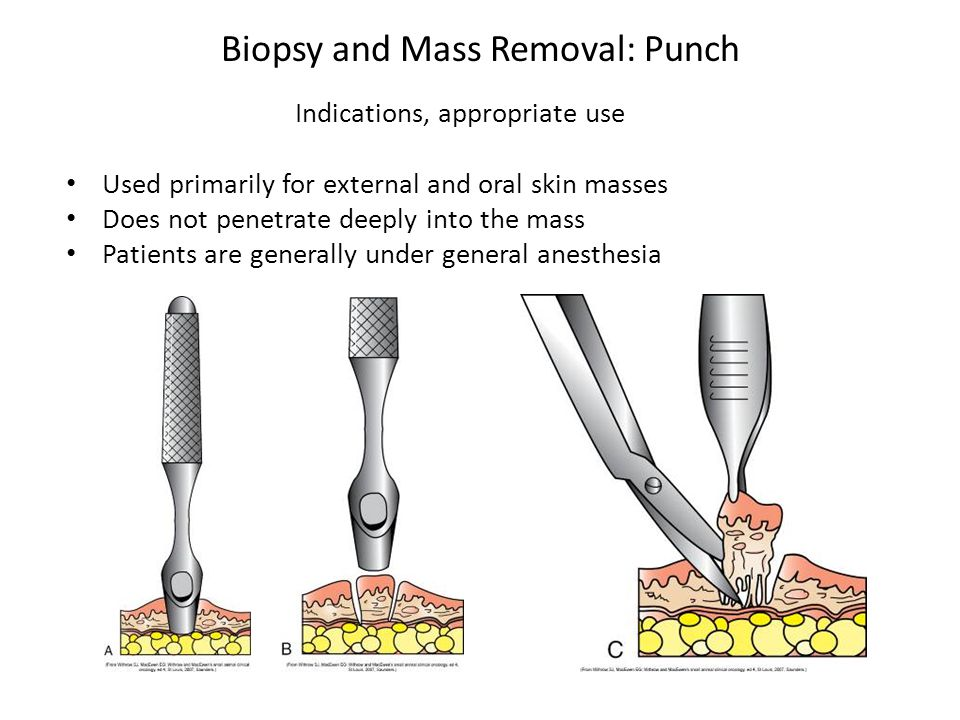 Biopsy and Mass Removal: Punch