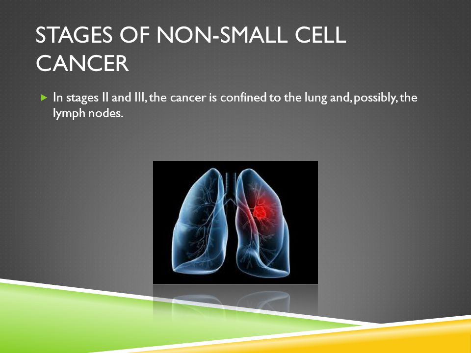 Stages of non-small cell cancer