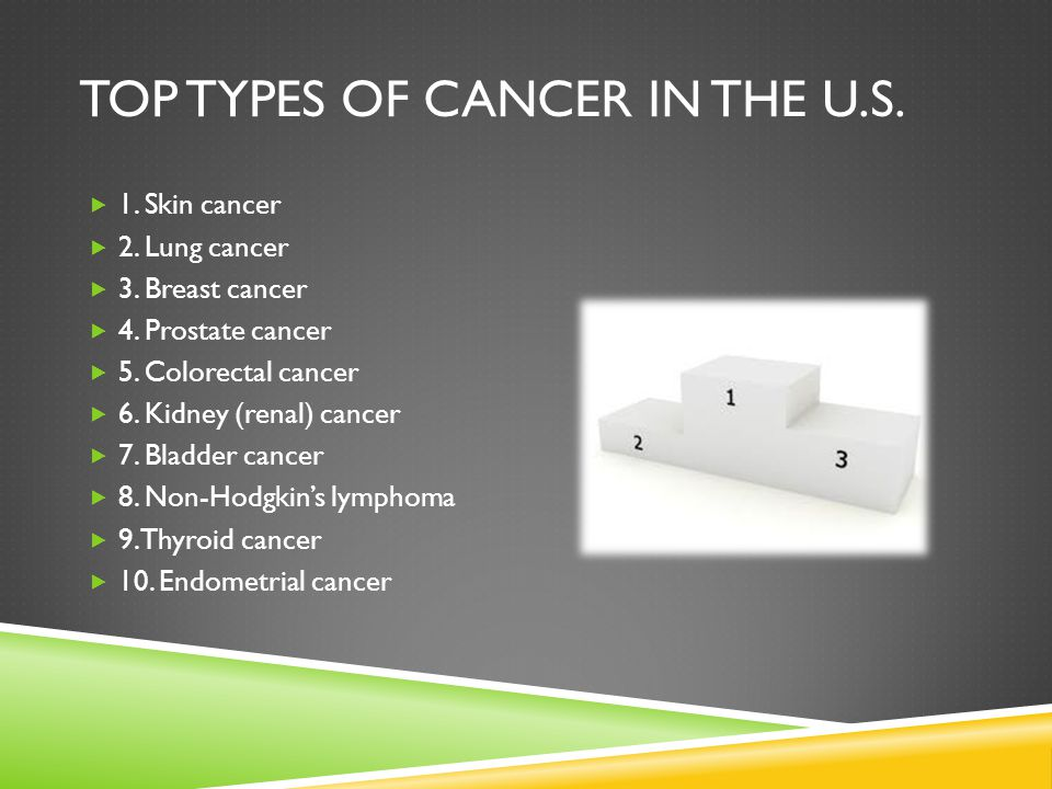 Top types of cancer in the u.s.