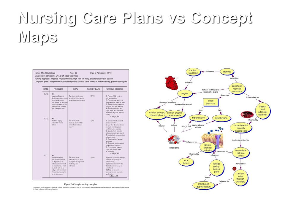 Concept Map For Nursing Care Plan.Critical Thinking And The Nursing Process Ppt Video Online Download