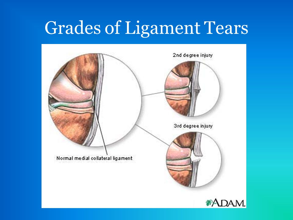 Medial Collateral Ligament Mcl Tear Ppt Video Online Download