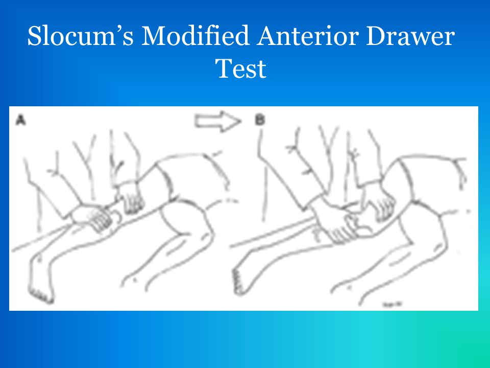Medial Collateral Ligament (MCL) Tear - ppt video online