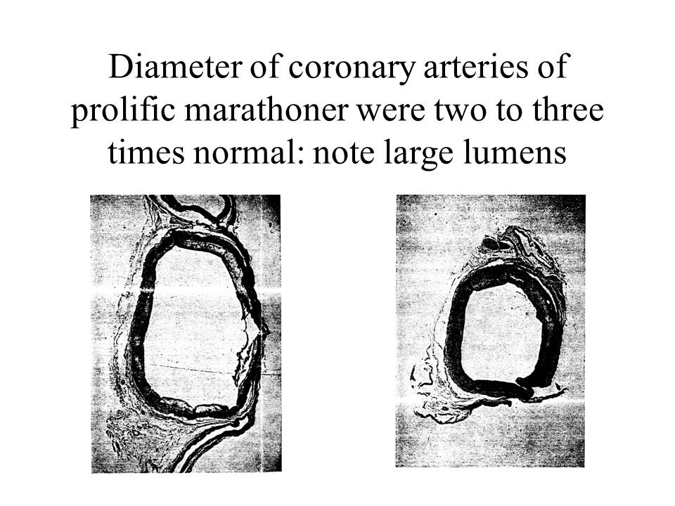 Diameter of coronary arteries of prolific marathoner were two to three times normal: note large lumens