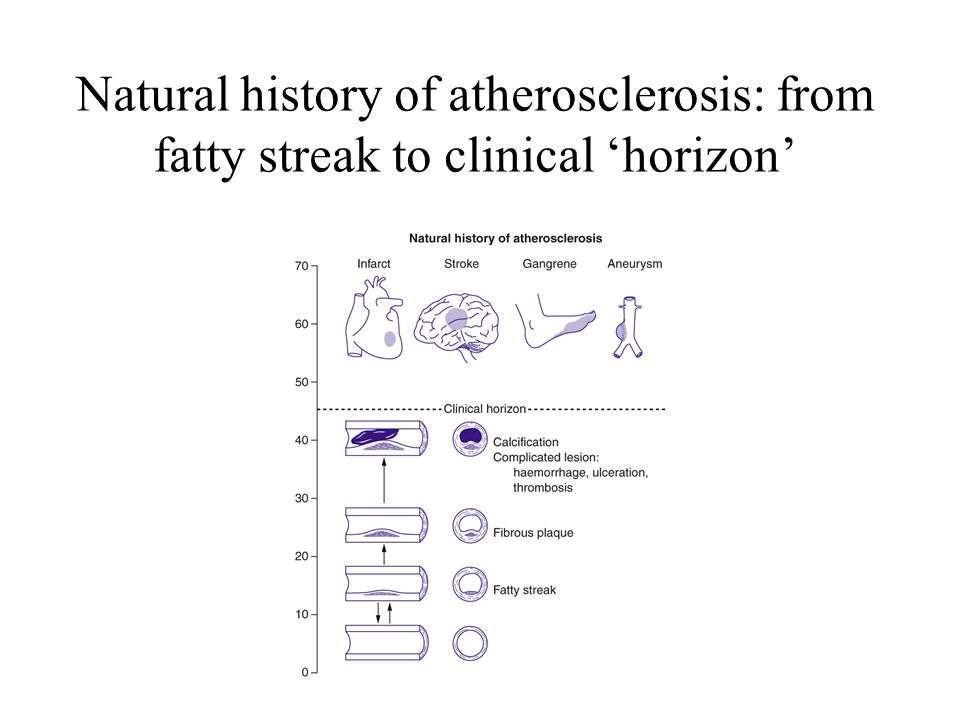 Natural history of atherosclerosis: from fatty streak to clinical 'horizon'