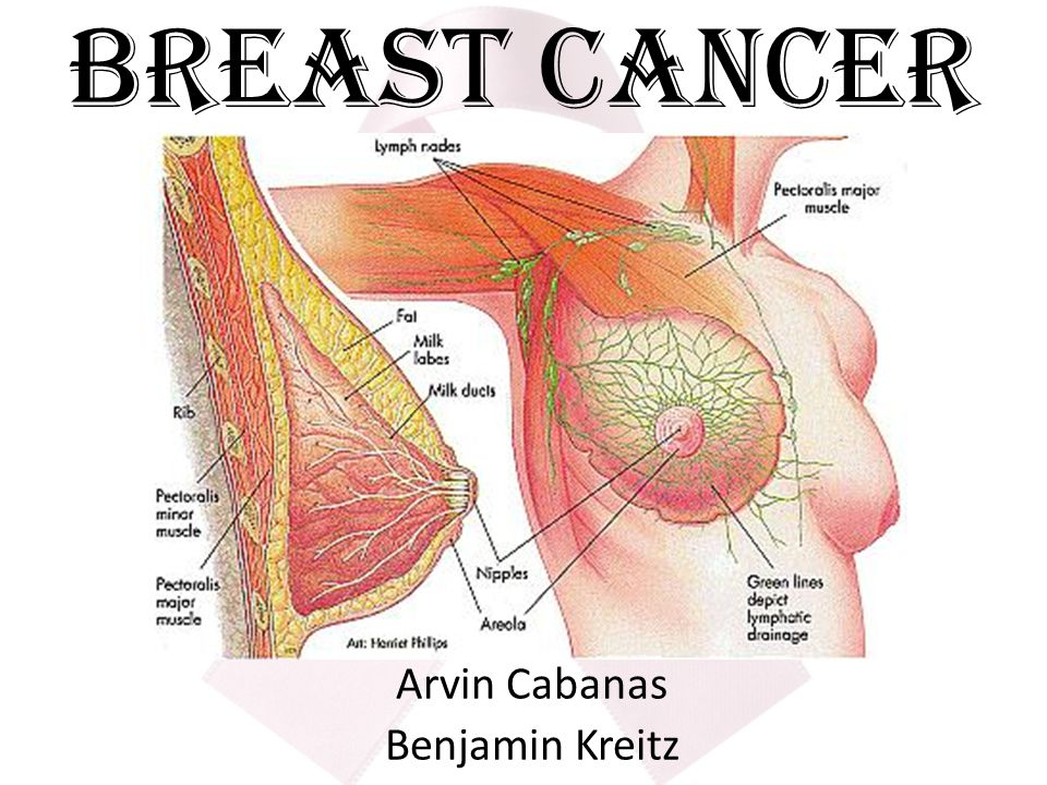 what is cancer a cancer is a malignant tumor which are cells that