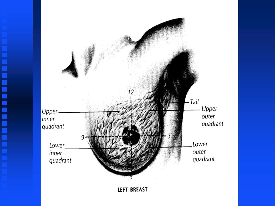 Before getting into symptoms of breast cancer and screening for breast cancer, I think it is appropriate to talk just a little bit about the normal physiology and anatomy of the breast.