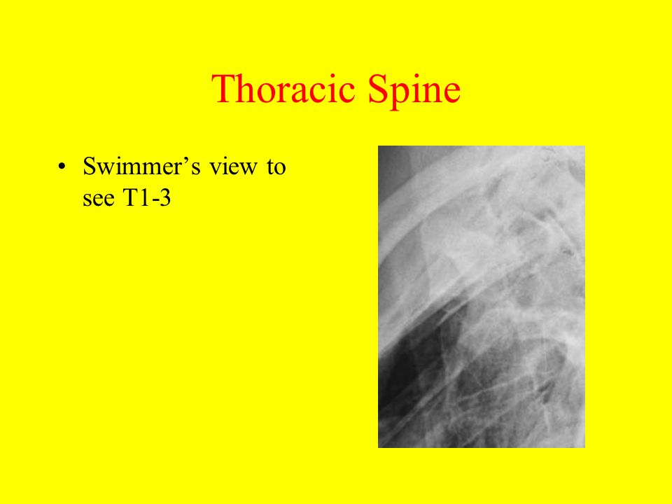 Thoracic And Lumbar Spine Trauma Ppt Video Online Download