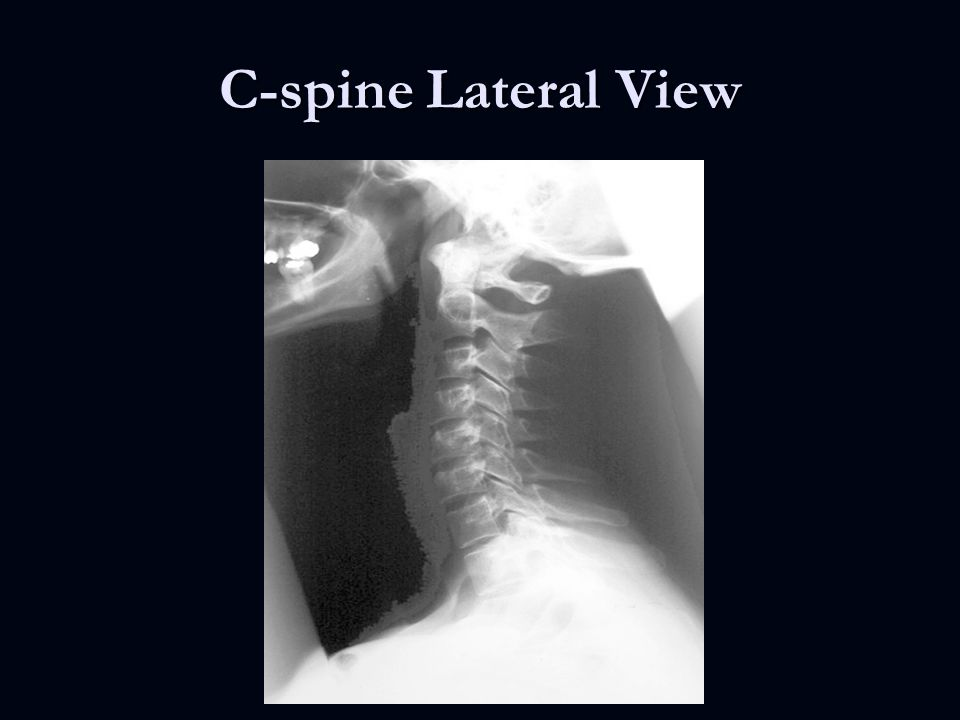 Traumatic Spine and Spinal Cord Injuries - ppt video online download