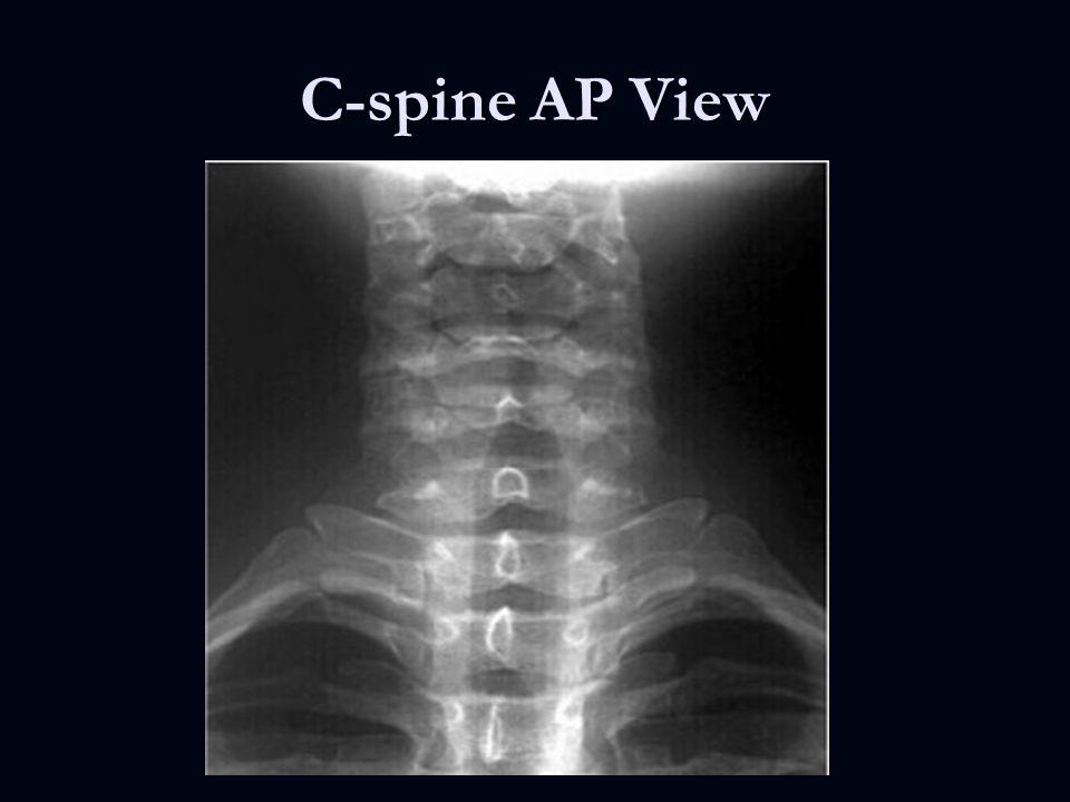 C Spine Gallery - human anatomy organs diagram
