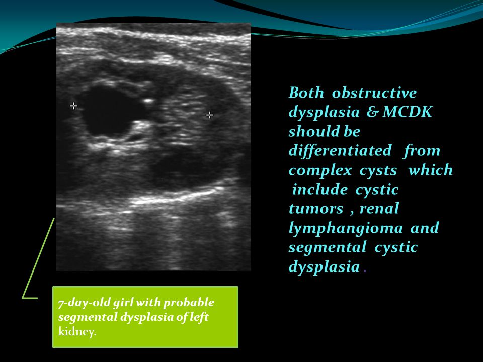 Both obstructive dysplasia & MCDK should be differentiated from complex cysts which include cystic tumors , renal lymphangioma and segmental cystic dysplasia .