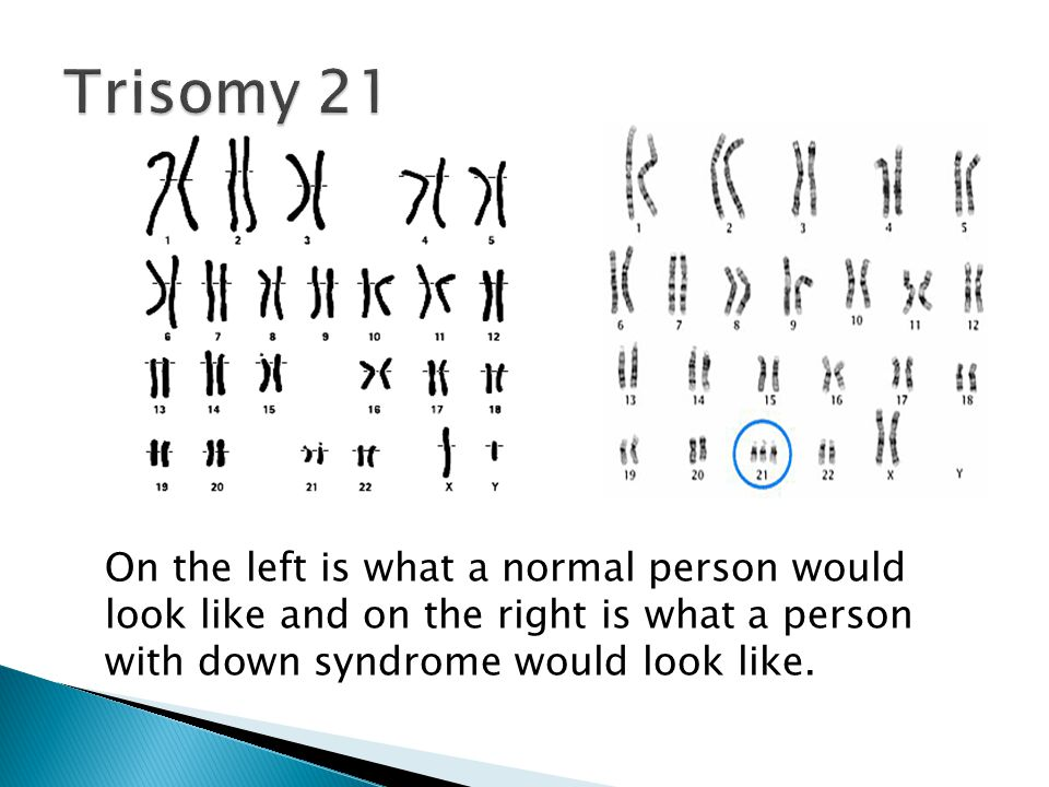 Chromosome Syndromes BY: Brandon and Kellen  - ppt video