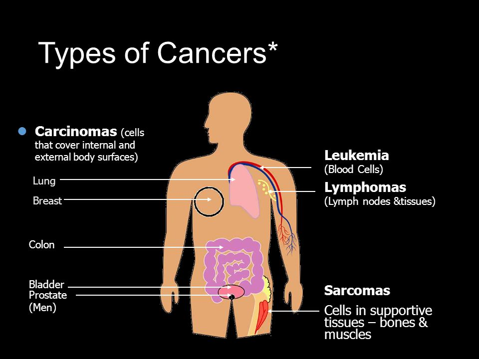Types of Cancers* Cancer is known by many different names. Carcinomas (cells that cover internal and external body surfaces)