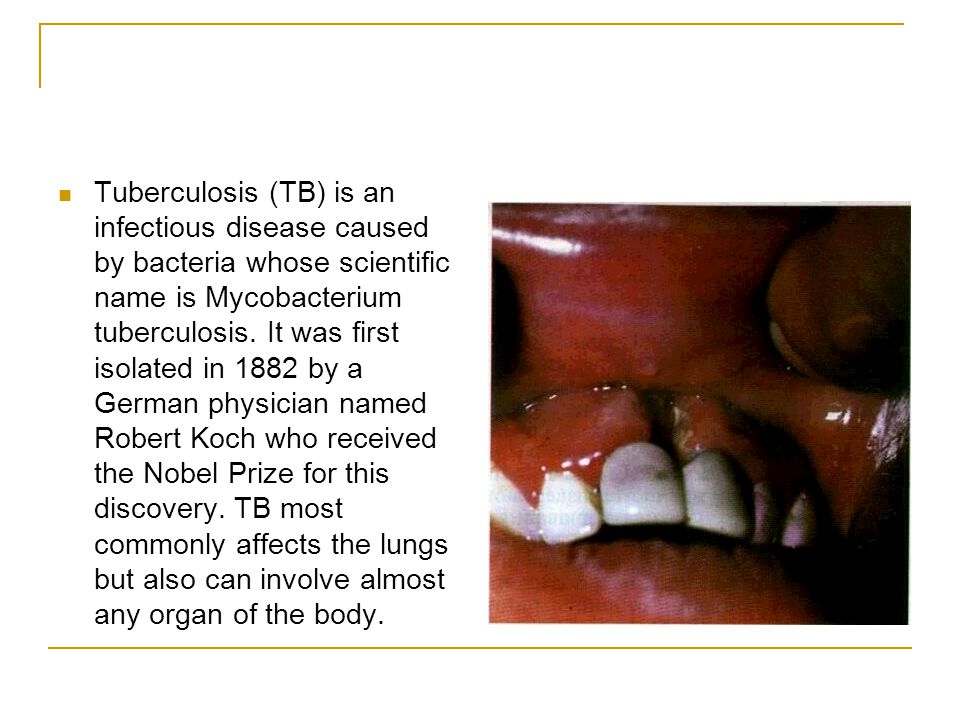 a study on the disease tuberculosis tb Tuberculosis (tb) is a multisystemic infectious disease caused by mycobacterium tuberculosis (or tb), a rod-shaped bacterium tb symptoms can span such a wide range that tb is termed the great imitator by many who study infectious diseases because tb symptoms can mimic many different.
