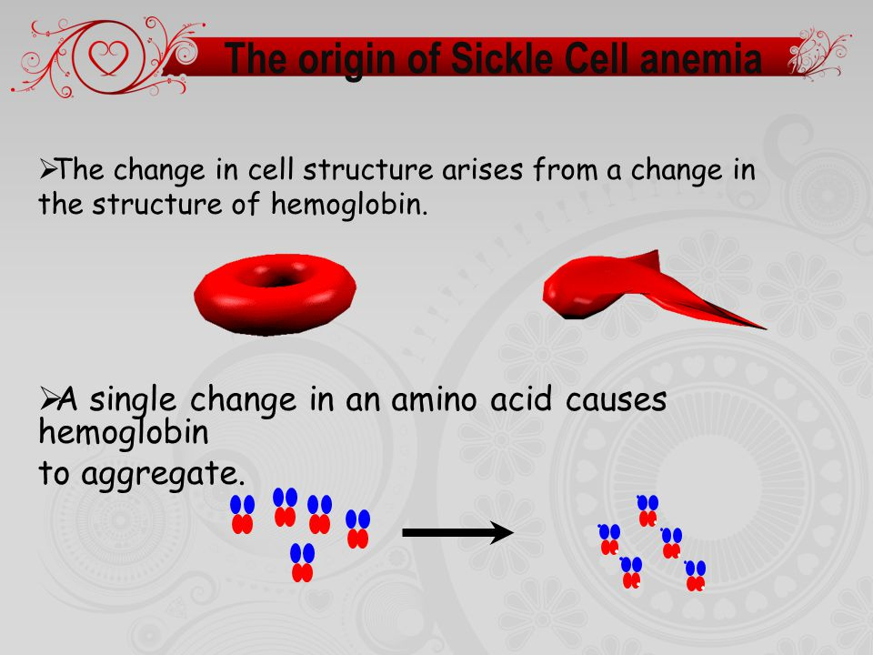 The origin of Sickle Cell anemia