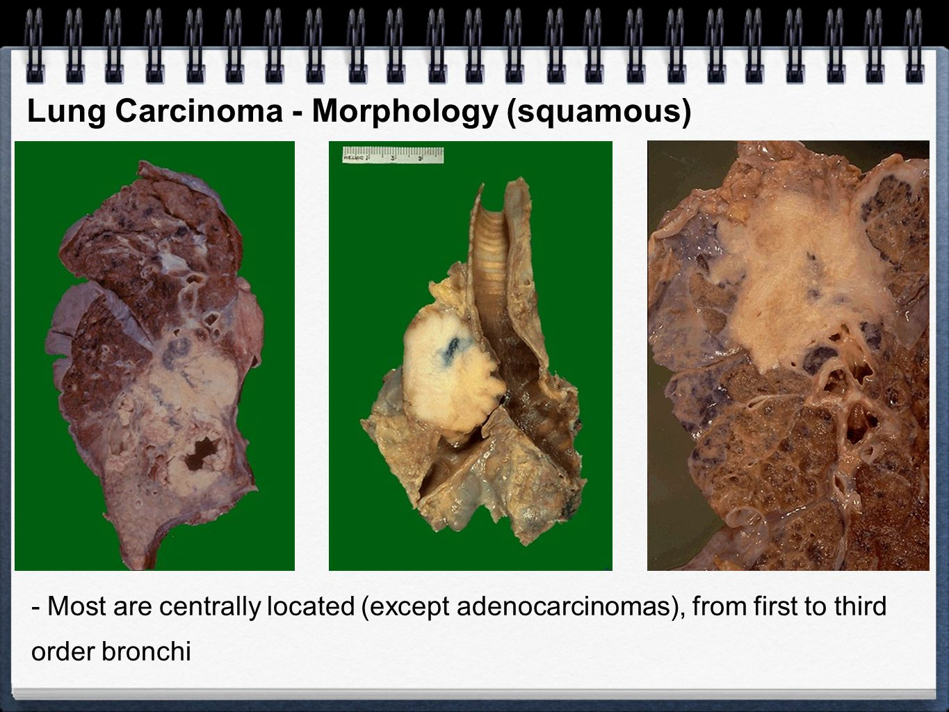 Lung Carcinoma - Morphology (squamous)