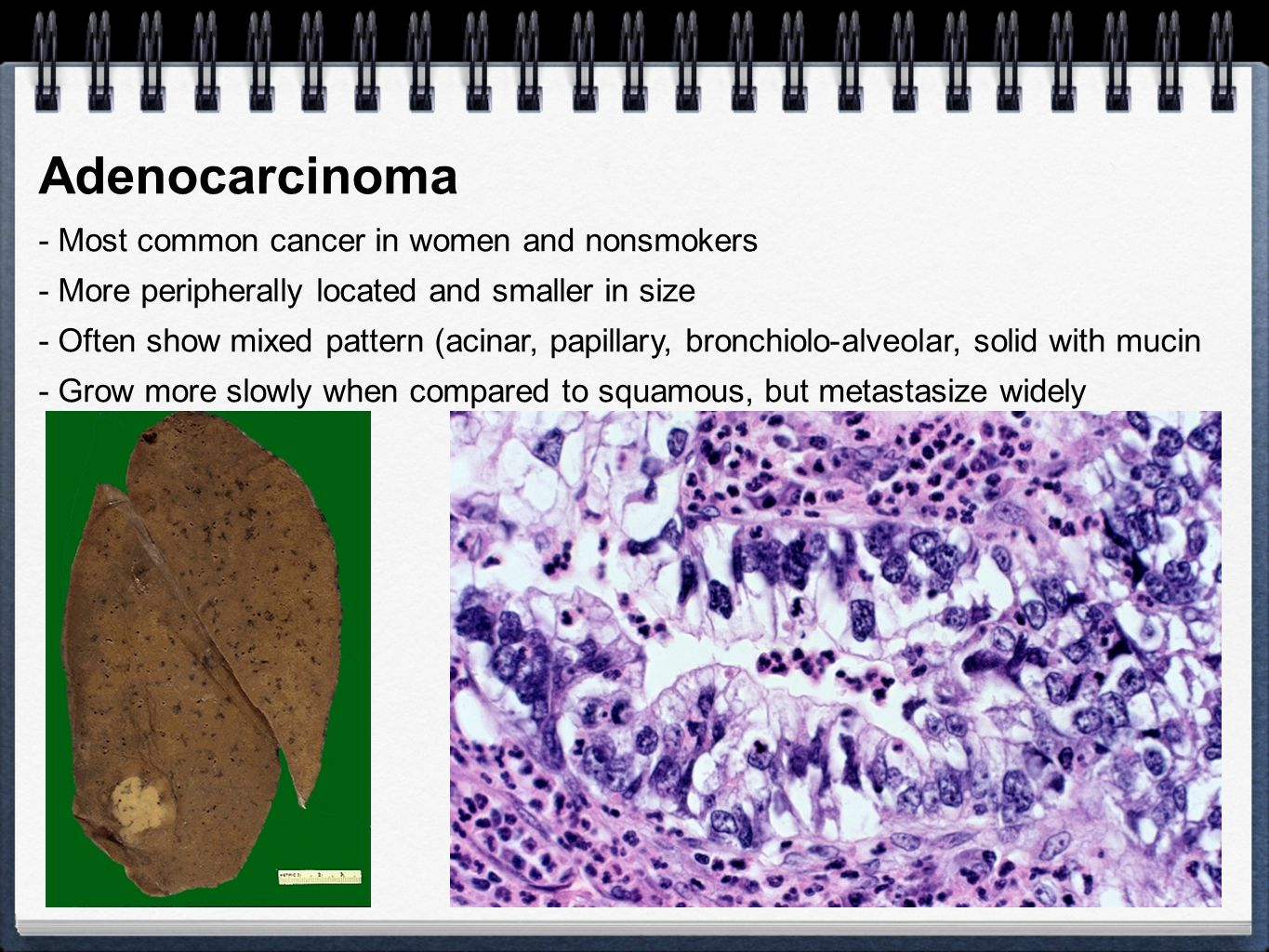 Adenocarcinoma - Most common cancer in women and nonsmokers