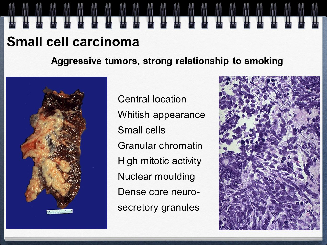 Aggressive tumors, strong relationship to smoking
