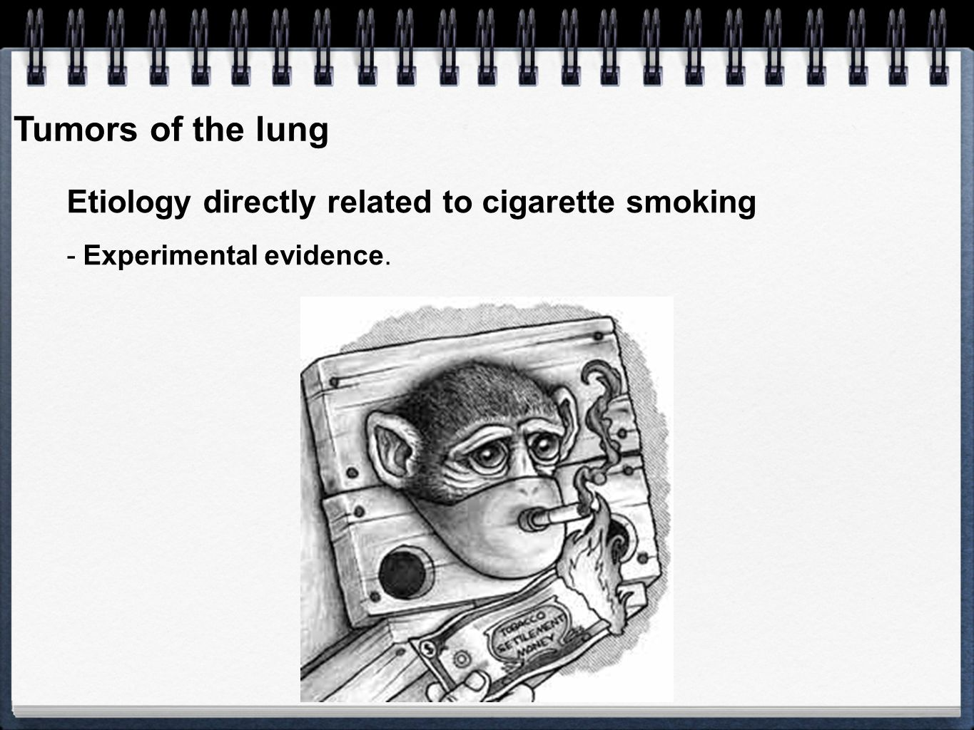 Tumors of the lung Etiology directly related to cigarette smoking