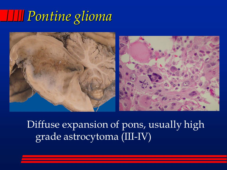 Pontine glioma Diffuse expansion of pons, usually high grade astrocytoma (III-IV)