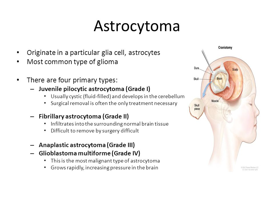 Astrocytoma Originate in a particular glia cell, astrocytes