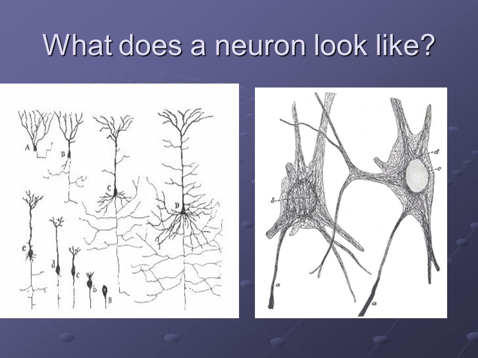 What does a neuron look like
