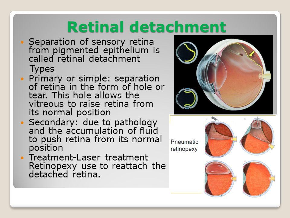 Tolle Retina Anatomie Ppt Ideen - Anatomie Ideen - finotti.info
