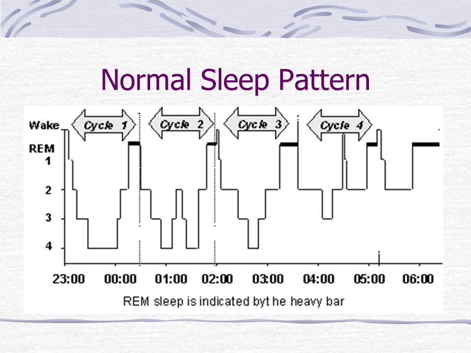 Diplomate American Academy Of Sleep Medicine Ppt Download Classy What Is A Normal Sleep Pattern