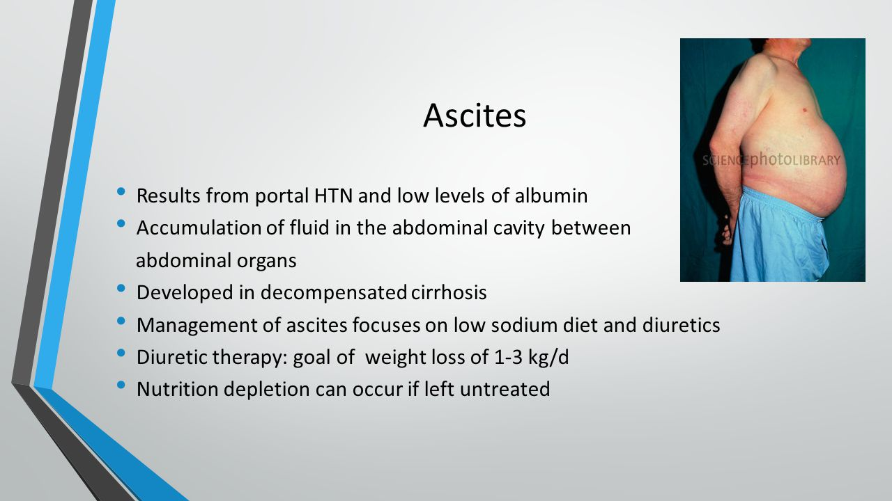 Ascites Results from portal HTN and low levels of albumin